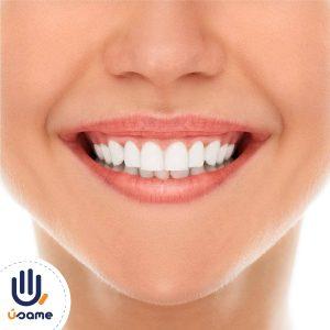 profilaxis-dental-quito