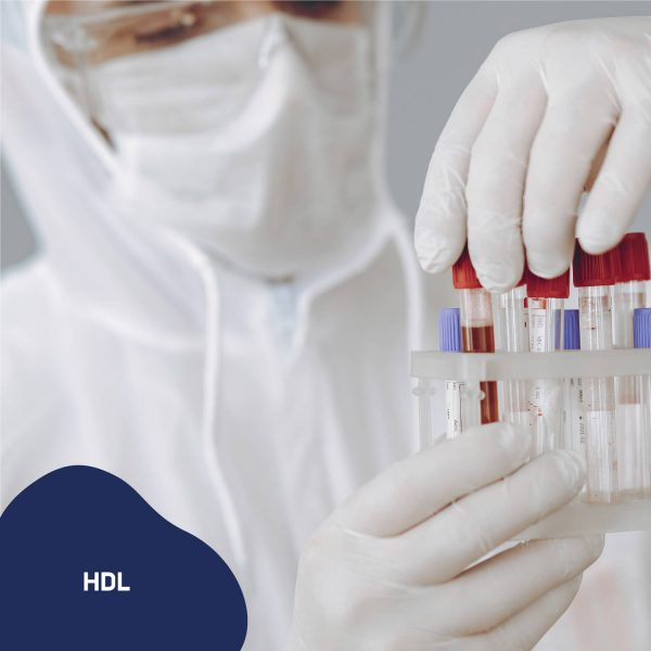 Examenes-de-laboratorio-a-domicilio-hdl